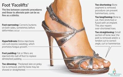 foot-facelift-loub-job-cosmetic-foot-surgery-wide-feet